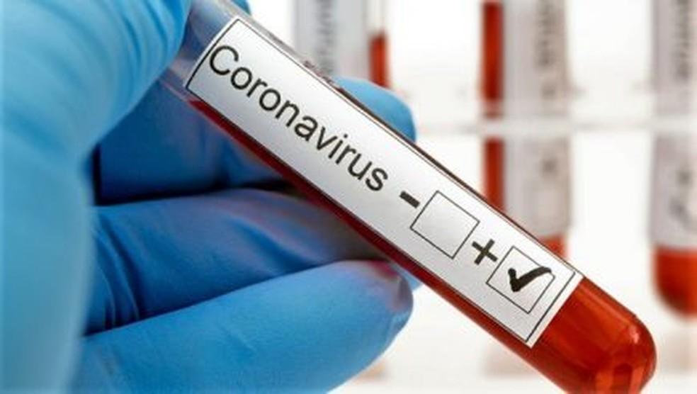 Secretaria de Saúde de Caruaru confirma 57 novos casos de covid-19